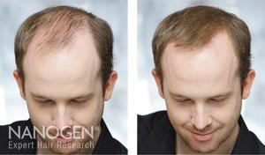 łysienie Zapobieganie Leczenie Porady Nanogenpl